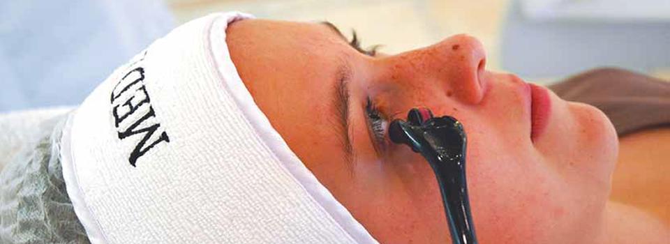 Behandlung-Roller-Mesotherapie